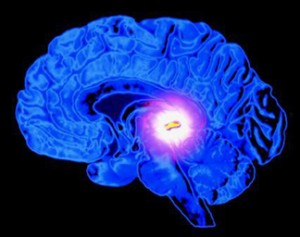 pinealglandinthe brain